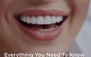 Everything You Need To Know About Veneers In Clearwater