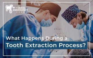 What Happens During A Tooth Extraction Process Featured Image
