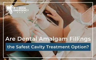 Are Dental Amalgam Fillings The Safest Cavity Treatment Option?