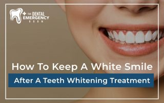 How To Keep A White Smile After A Teeth Whitening Treatment
