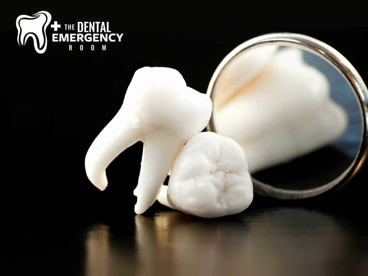 Expert Florida Dentists Explain The Dangers Of Pericoronitis In Clearwater, FL